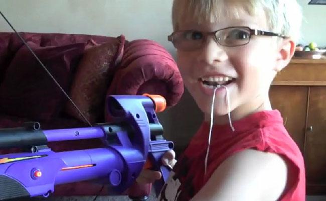 Использование Большого Лука для безболезненного удаления зуба (видео)